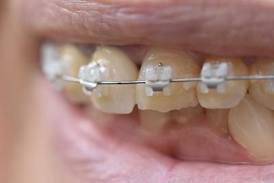 女人,牙齿,羊毛帽,牙齿矫正器,口腔卫生,健康保健,珐琅,牙医,嘴唇
