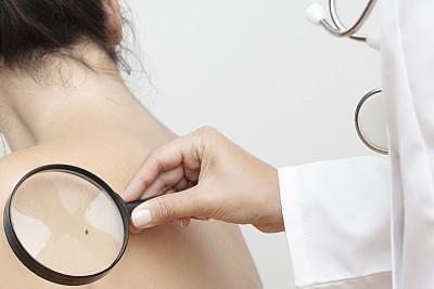 皮肤癌,健康保健,中老年女人,听诊器,土耳其,无法辨认的人,皮肤病学,癌症,肩,女人