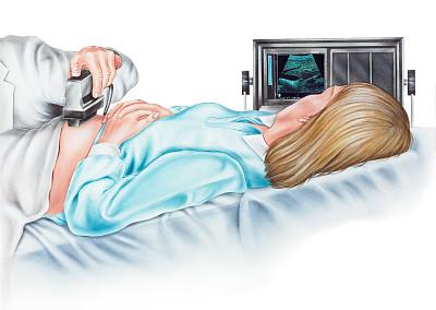 女人,子宫内膜异位,胎儿,超声波,美,水平画幅,设备用品,无人,性主题,健康保健