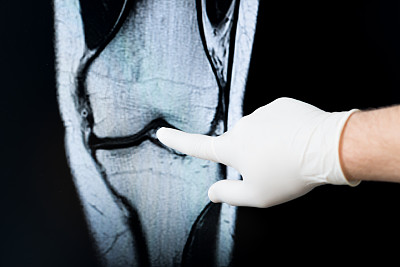 x光,x光片,半月状软骨,髌骨,软骨,骨质疏松症,风湿病,放射科专家