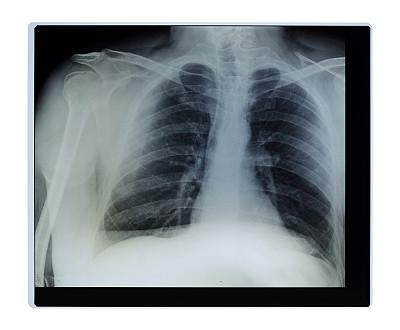x光,肩,英文字母x,人类肺脏,医学扫描,x光片,脊柱,人类心脏,人类骨架,泰国人