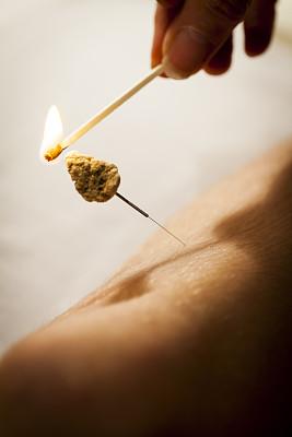 针灸,针,针灸师,针灸针,指压,手术缝合,垂直画幅,spa美容,健康,烟