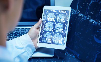 x光,药丸,放射科专家,x光片,癌症,笔记本,平板电脑,水平画幅